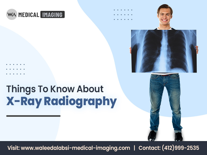 Things To Know About X-Ray Radiography